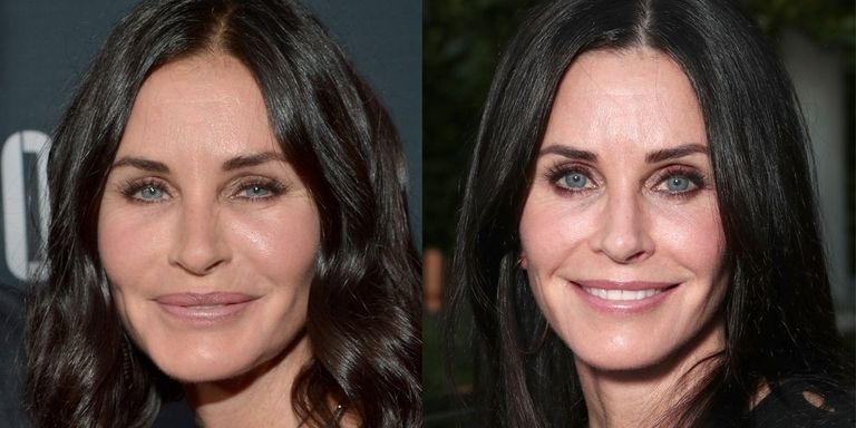 courtney cox, celebs plastische chirurgie