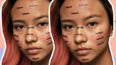 fotocampagne acne