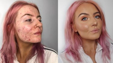 dekkende foundation acne
