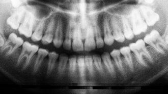 jongetje 526 tanden
