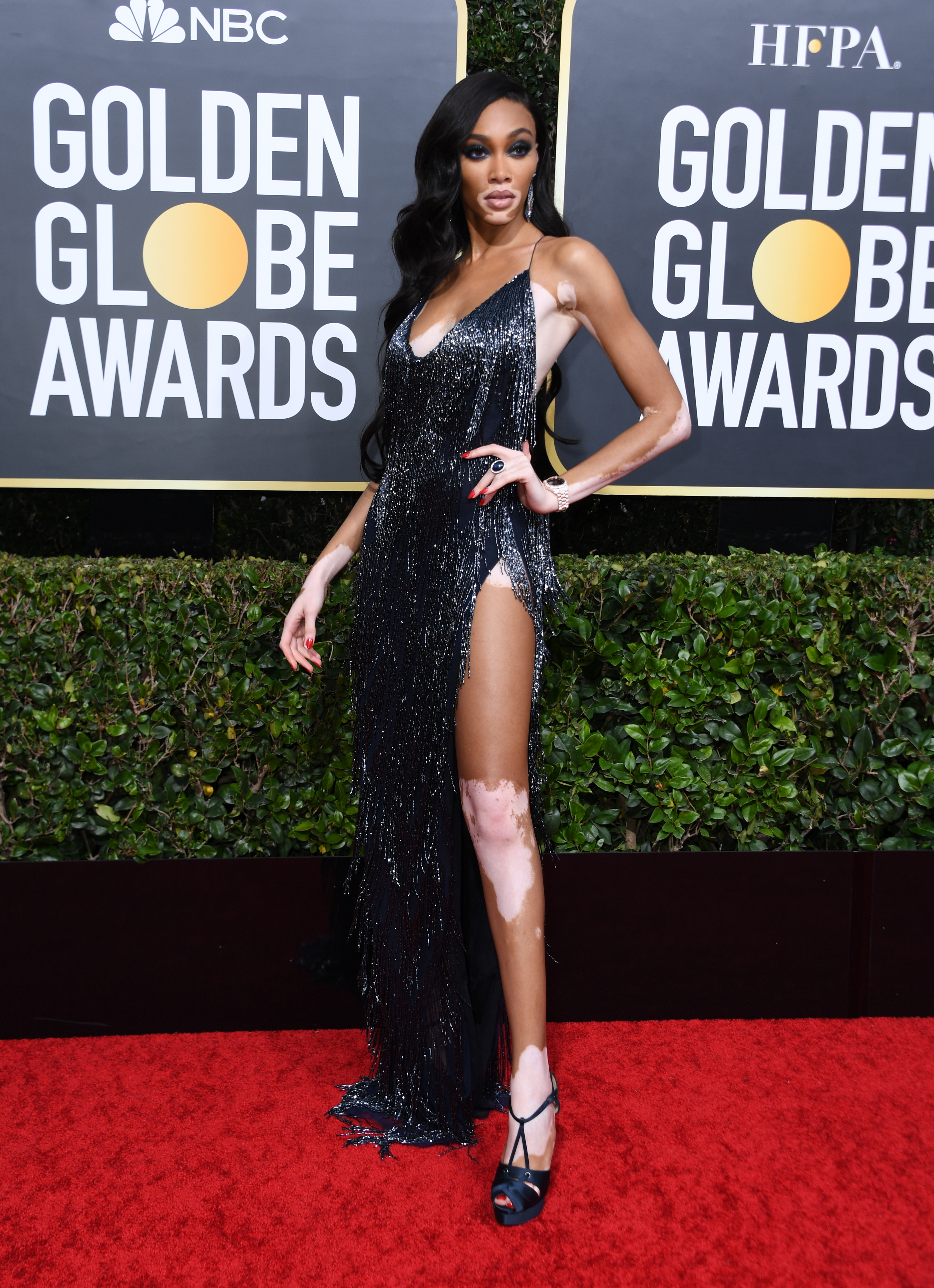 winnie harlow golden globes celebrities